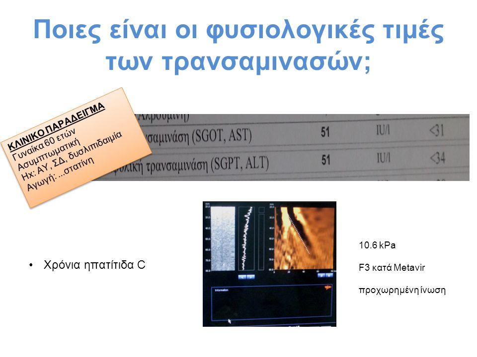Τι θεωρούμε αυξημένες τρανσαμινάσες; Χρησιμοποιείτε μια τιμή ως UNL -40 IU/L (κλασσική τιμή) -19 IU/L (γυναίκες) & 30 IU/L (άνδρες)* -μη βασίζεστε στα UNL των εργαστηρίων Μη χρησιμοποιείτε X UNL ως κριτήρια για λήψη αποφάσεων *Prati et al Ann Intern Med 2002