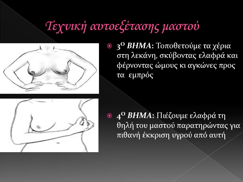  3 Ο ΒΗΜΑ: Τοποθετούμε τα χέρια στη λεκάνη, σκύβοντας ελαφρά και φέρνοντας ώμους κι αγκώνες προς τα εμπρός  4 Ο ΒΗΜΑ: Πιέζουμε ελαφρά τη θηλή του μαστού παρατηρώντας για πιθανή έκκριση υγρού από αυτή
