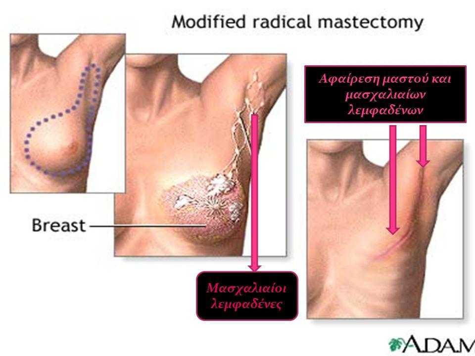 Μασχαλιαίοι λεμφαδένες Αφαίρεση μαστού και μασχαλιαίων λεμφαδένων