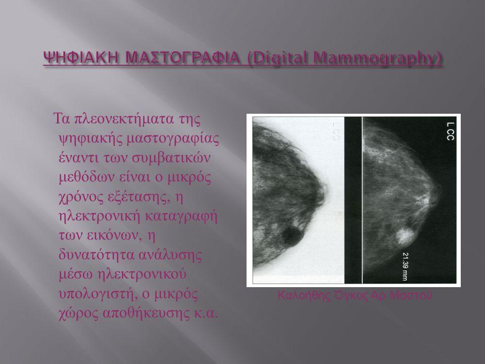 Τα πλεονεκτήματα της ψηφιακής μαστογραφίας έναντι των συμβατικών μεθόδων είναι ο μικρός χρόνος εξέτασης, η ηλεκτρονική καταγραφή των εικόνων, η δυνατό