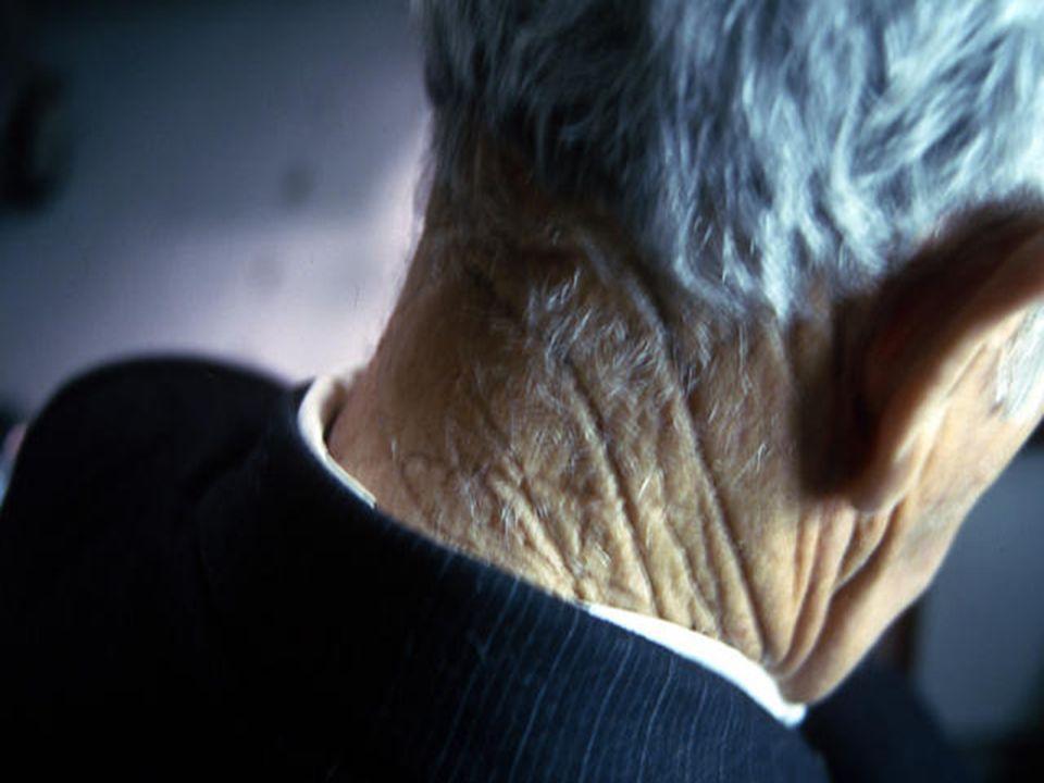  ΠΡΟΚΑΚΟΗΘΕΙΣ  ΑΚΤΙΝΙΚΕΣ ΥΠΕΡΚΕΡΑΤΩΣΕΙΣ – ΔΕΡΜΑΤΙΚΟ ΚΕΡΑΣ  ΔΥΣΠΛΑΣΤΙΚΟΙ ΣΠΙΛΟΙ – ΚΑΚΟΗΘΗΣ ΦΑΚΗ – ΣΥΓΓΕΝΕΙΣ ΜΕΛΑΓΧΡΩΜΑΤΙΚΟΙ ΣΠΙΛΟΙ