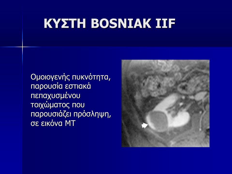 ΚΥΣΤΗ BOSNIAK IIF Ομοιογενής πυκνότητα, παρουσία εστιακά πεπαχυσμένου τοιχώματος που παρουσιάζει πρόσληψη, σε εικόνα ΜΤ