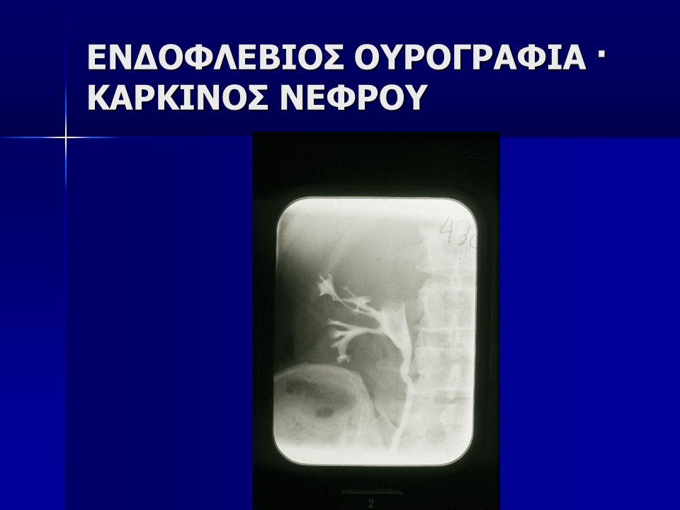 ΕΝΔΟΦΛΕΒΙΟΣ ΟΥΡΟΓΡΑΦΙΑ · ΚΑΡΚΙΝΟΣ ΝΕΦΡΟΥ