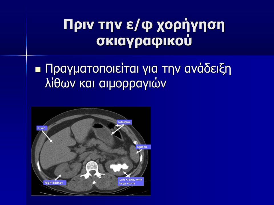 Πριν την ε/φ χορήγηση σκιαγραφικού Πραγματοποιείται για την ανάδειξη λίθων και αιμορραγιών Πραγματοποιείται για την ανάδειξη λίθων και αιμορραγιών