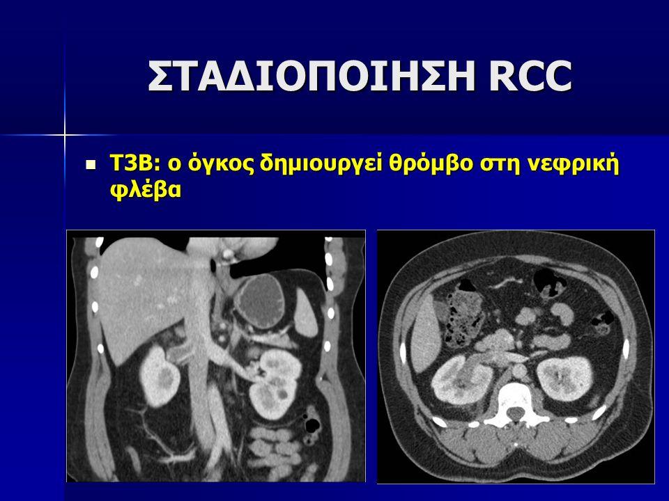Τ3Β: ο όγκος δημιουργεί θρόμβο στη νεφρική φλέβα Τ3Β: ο όγκος δημιουργεί θρόμβο στη νεφρική φλέβα ΣΤΑΔΙΟΠΟΙΗΣΗ RCC ΣΤΑΔΙΟΠΟΙΗΣΗ RCC