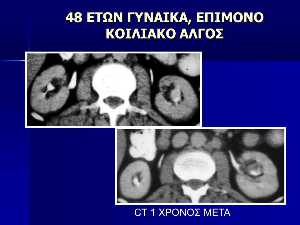48 ΕΤΩΝ ΓΥΝΑΙΚΑ, ΕΠΙΜΟΝΟ ΚΟΙΛΙΑΚΟ ΑΛΓΟΣ CT 1 ΧΡΟΝΟΣ ΜΕΤΑ