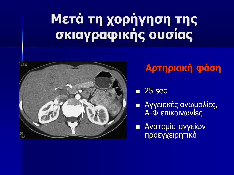 Μετά τη χορήγηση της σκιαγραφικής ουσίας Aρτηριακή φάση Aρτηριακή φάση 25 sec 25 sec Αγγειακές ανωμαλίες, Α-Φ επικοινωνίες Αγγειακές ανωμαλίες, Α-Φ επ