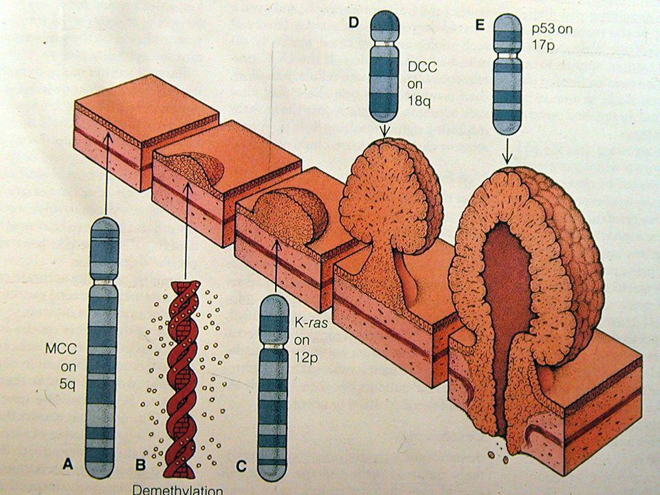 Πέμπτη οδός Υβριδική οδοντωτή οδός του ορθοκολικού καρκινώματος – Mεταλλαγή του KRAS, χρωμοσωμικά ασταθείς, μεθυλίωση του MGMT.