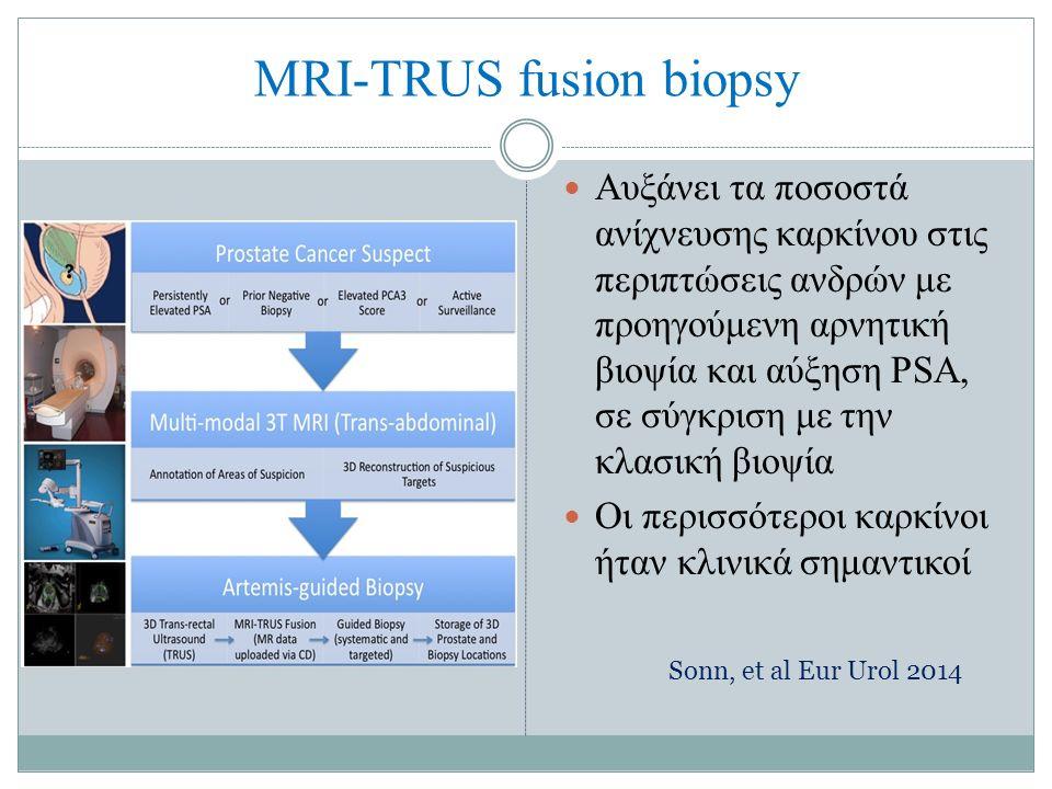 MRI-TRUS fusion biopsy Aυξάνει τα ποσοστά ανίχνευσης καρκίνου στις περιπτώσεις ανδρών με προηγούμενη αρνητική βιοψία και αύξηση PSA, σε σύγκριση με την κλασική βιοψία Οι περισσότεροι καρκίνοι ήταν κλινικά σημαντικοί Sonn, et al Eur Urol 2014