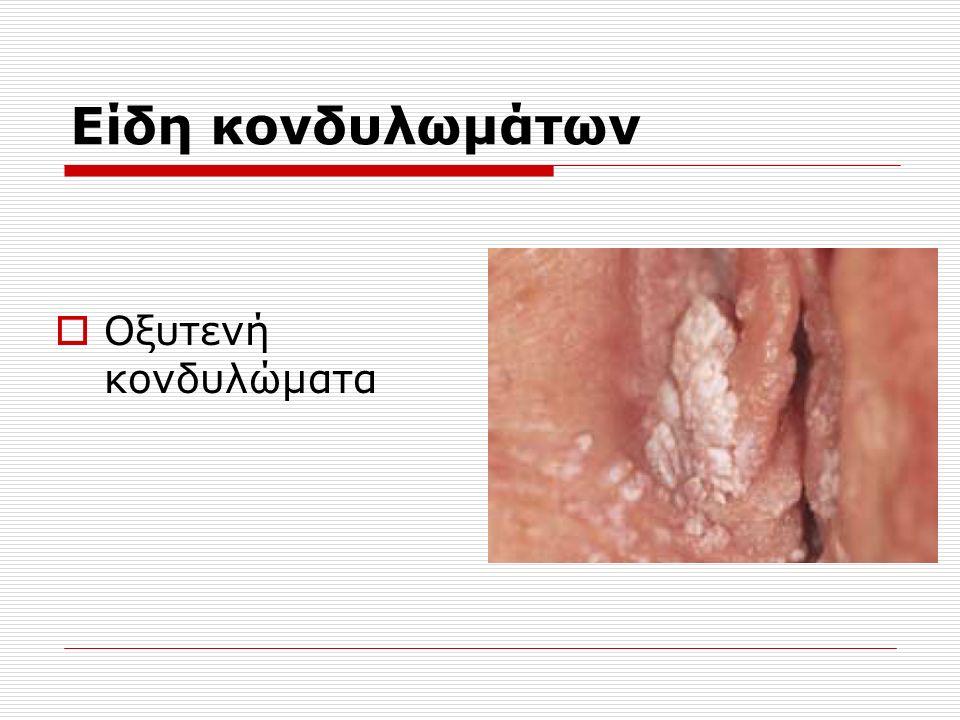 Είδη κονδυλωμάτων  Οξυτενή κονδυλώματα