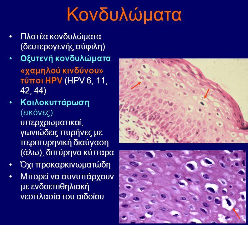 Κονδυλώματα Πλατέα κονδυλώματα (δευτερογενής σύφιλη) Οξυτενή κονδυλώματα «χαμηλού κινδύνου» τύποι HPV (HPV 6, 11, 42, 44) Κοιλοκυττάρωση (εικόνες): υπ