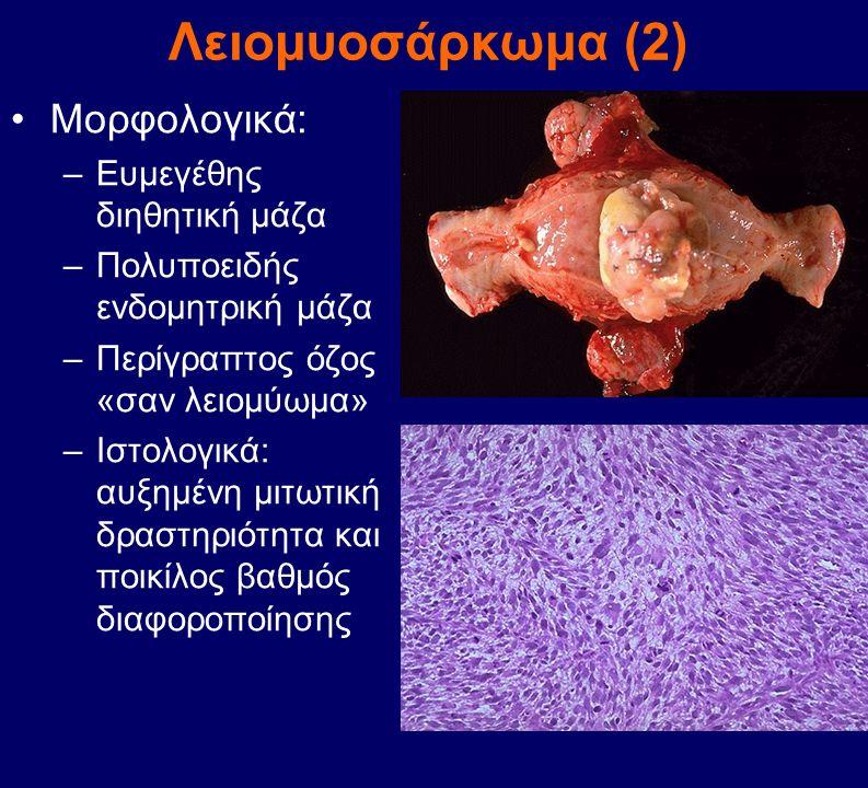 Λειομυοσάρκωμα (2) Μορφολογικά: –Ευμεγέθης διηθητική μάζα –Πολυποειδής ενδομητρική μάζα –Περίγραπτος όζος «σαν λειομύωμα» –Ιστολογικά: αυξημένη μιτωτι