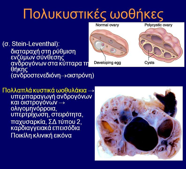 Πολυκυστικές ωοθήκες (σ. Stein-Leventhal): διαταραχή στη ρύθμιση ενζύμων σύνθεσης ανδρογόνων στα κύτταρα της θήκης (ανδροστενεδιόνη  οιστρόνη) Πολλαπ