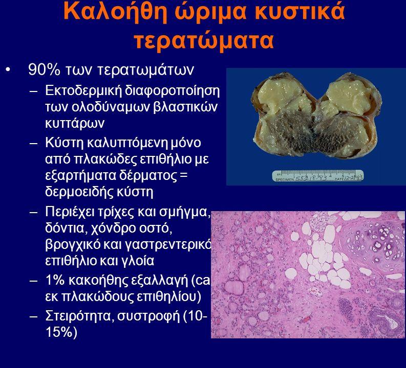 Καλοήθη ώριμα κυστικά τερατώματα 90% των τερατωμάτων –Εκτοδερμική διαφοροποίηση των ολοδύναμων βλαστικών κυττάρων –Κύστη καλυπτόμενη μόνο από πλακώδες