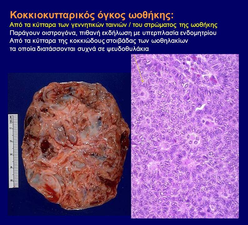 Κοκκιοκυτταρικός όγκος ωοθήκης: Από τα κύτταρα των γεννητικών ταινιών / του στρώματος της ωοθήκης Παράγουν οιστρογόνα, πιθανή εκδήλωση με υπερπλασία ε