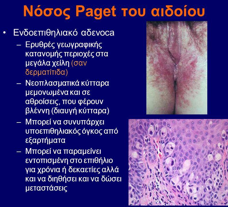 Νόσος Paget του αιδοίου Ενδοεπιθηλιακό αδενοca –Ερυθρές γεωγραφικής κατανομής περιοχές στα μεγάλα χείλη (σαν δερματίτιδα) –Νεοπλασματικά κύτταρα μεμον