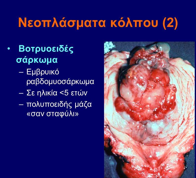 Νεοπλάσματα κόλπου (2) Βοτρυοειδές σάρκωμα –Εμβρυικό ραβδομυοσάρκωμα –Σε ηλικία <5 ετών –πολυποειδής μάζα «σαν σταφύλι»