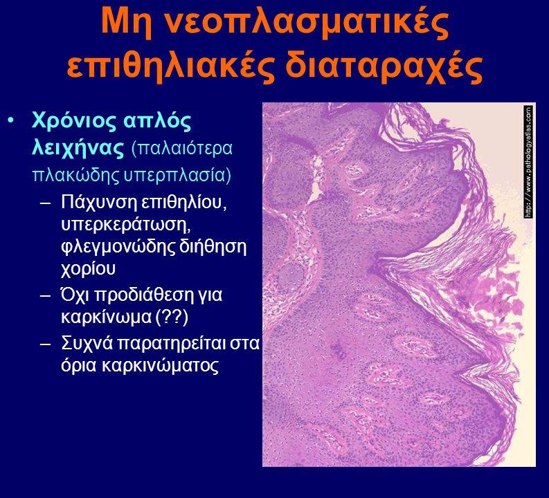 Μορφολογικά –Λευκοπλακία –Εξωφυτικός όγκος –Ενδοφυτικός (ελκωτικός) όγκος –Οι σχετιζόμενοι με HPV Πολυεστιακοί, μυρμηκιώδεις Χαμηλής διαφοροποίησης –Διήθηση χορίου –Μετάσταση σε επιχώριους λεμφαδένες –Λεμφο-αιματογενής διασπορά Πρόγνωση –<2cm : 75% 5ετής επιβίωση –>2cm :10% 10ετής επιβίωση Καρκίνωμα αιδοίου