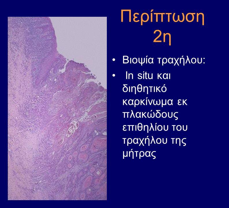 Περίπτωση 2η Βιοψία τραχήλου: In situ και διηθητικό καρκίνωμα εκ πλακώδους επιθηλίου του τραχήλου της μήτρας