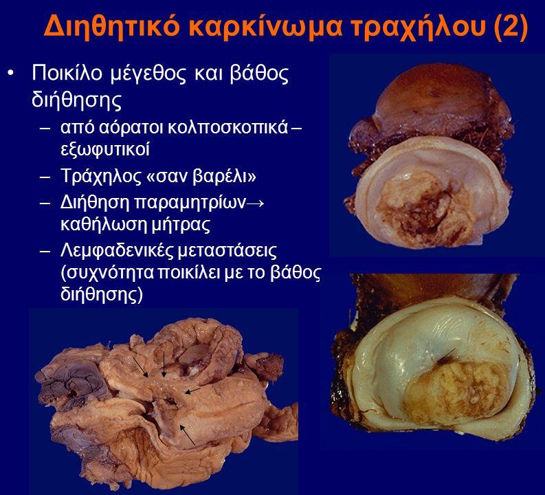 Διηθητικό καρκίνωμα τραχήλου (2) Ποικίλο μέγεθος και βάθος διήθησης –από αόρατοι κολποσκοπικά – εξωφυτικοί –Τράχηλος «σαν βαρέλι» –Διήθηση παραμητρίων