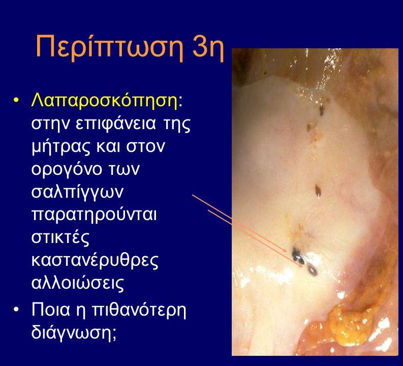 Περίπτωση 3η Λαπαροσκόπηση: στην επιφάνεια της μήτρας και στον ορογόνο των σαλπίγγων παρατηρούνται στικτές καστανέρυθρες αλλοιώσεις Ποια η πιθανότερη