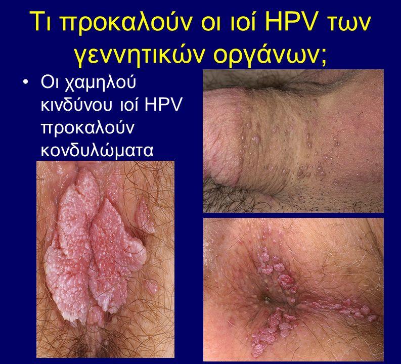 Τι προκαλούν οι ιοί HPV των γεννητικών οργάνων; Οι χαμηλού κινδύνου ιοί HPV προκαλούν κονδυλώματα