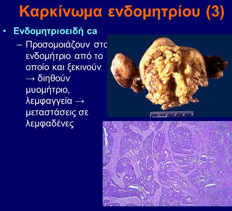 Καρκίνωμα ενδομητρίου (3) Ενδομητριοειδή ca –Προσομοιάζουν στο ενδομήτριο από το οποίο και ξεκινούν → διηθούν μυομήτριο, λεμφαγγεία → μεταστάσεις σε λ