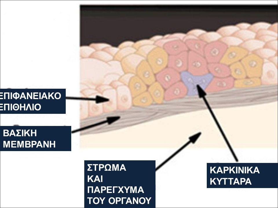 Υπερπλασία και Καρκίνος Η υπερπλασία και η υπερτροφία είναι απαντήσεις σε χρόνιο ερεθισμό και υποχωρούν όταν ο αιτιολογικός παράγοντας απομακρύνεται.