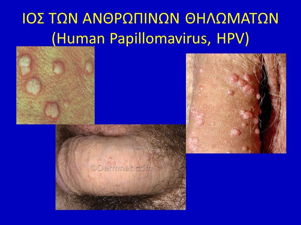 ΙΟΣ ΤΩΝ ΑΝΘΡΩΠΙΝΩΝ ΘΗΛΩΜΑΤΩΝ (Human Papillomavirus, HPV)