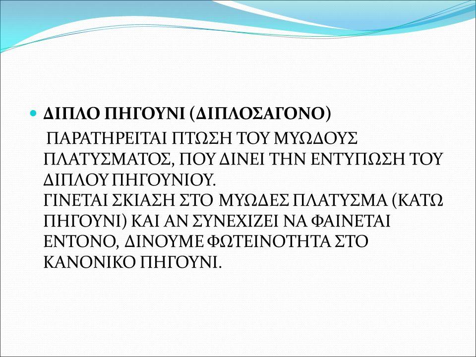 ΔΙΠΛΟ ΠΗΓΟΥΝΙ (ΔΙΠΛΟΣΑΓΟΝΟ) ΠΑΡΑΤΗΡΕΙΤΑΙ ΠΤΩΣΗ ΤΟΥ ΜΥΩΔΟΥΣ ΠΛΑΤΥΣΜΑΤΟΣ, ΠΟΥ ΔΙΝΕΙ ΤΗΝ ΕΝΤΥΠΩΣΗ ΤΟΥ ΔΙΠΛΟΥ ΠΗΓΟΥΝΙΟΥ. ΓΙΝΕΤΑΙ ΣΚΙΑΣΗ ΣΤΟ ΜΥΩΔΕΣ ΠΛΑΤΥΣΜ