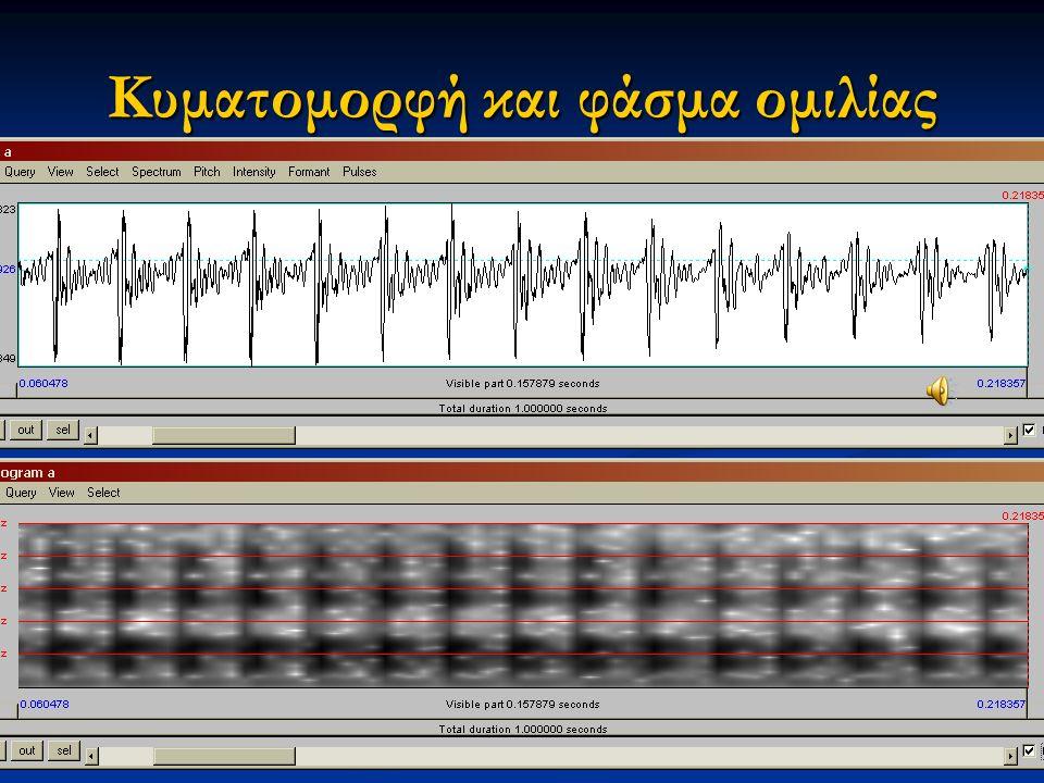 Εαρινό εξάμηνο 2015 9Διαταραχές Φωνής & Ακοής στις Ερμηνευτικές Τέχνες και τη Μουσική Κυματομορφή και φάσμα ομιλίας