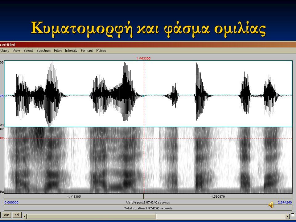 Εαρινό εξάμηνο 2015 10Διαταραχές Φωνής & Ακοής στις Ερμηνευτικές Τέχνες και τη Μουσική Κυματομορφή και φάσμα ομιλίας