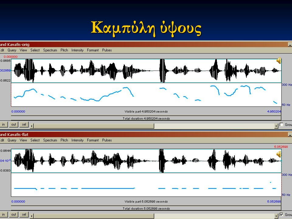 ESystem VocalTractLab (demo) Εαρινό εξάμηνο 2015 15Διαταραχές Φωνής & Ακοής στις Ερμηνευτικές Τέχνες και τη Μουσική