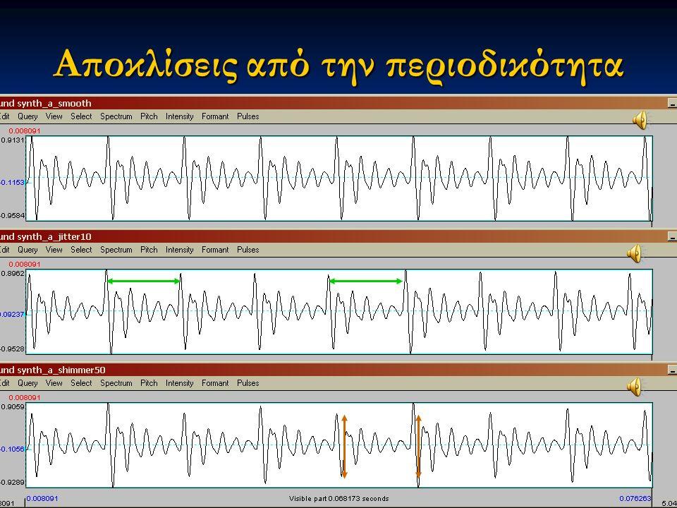 Εαρινό εξάμηνο 2015 18Διαταραχές Φωνής & Ακοής στις Ερμηνευτικές Τέχνες και τη Μουσική Αποκλίσεις από την περιοδικότητα