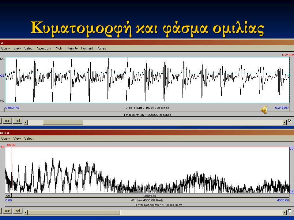Εαρινό εξάμηνο 2015 17Διαταραχές Φωνής & Ακοής στις Ερμηνευτικές Τέχνες και τη Μουσική Καμπύλη ύψους