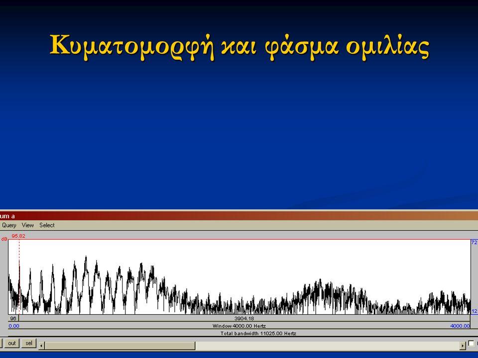 Εαρινό εξάμηνο 2015 7Διαταραχές Φωνής & Ακοής στις Ερμηνευτικές Τέχνες και τη Μουσική Κυματομορφή και φάσμα ομιλίας