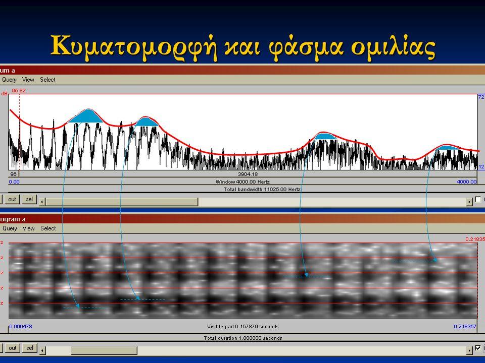 Εαρινό εξάμηνο 2015 8Διαταραχές Φωνής & Ακοής στις Ερμηνευτικές Τέχνες και τη Μουσική Κυματομορφή και φάσμα ομιλίας
