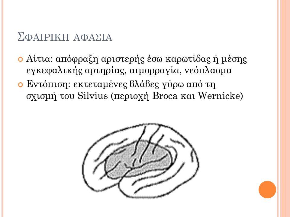 Σ ΦΑΙΡΙΚΗ ΑΦΑΣΙΑ Αίτια: απόφραξη αριστερής έσω καρωτίδας ή μέσης εγκεφαλικής αρτηρίας, αιμορραγία, νεόπλασμα Εντόπιση: εκτεταμένες βλάβες γύρω από τη σχισμή του Silvius (περιοχή Broca και Wernicke)