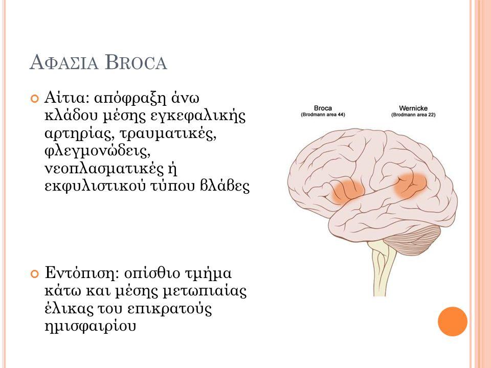 Α ΦΑΣΙΑ B ROCA Αίτια: απόφραξη άνω κλάδου μέσης εγκεφαλικής αρτηρίας, τραυματικές, φλεγμονώδεις, νεοπλασματικές ή εκφυλιστικού τύπου βλάβες Εντόπιση: οπίσθιο τμήμα κάτω και μέσης μετωπιαίας έλικας του επικρατούς ημισφαιρίου