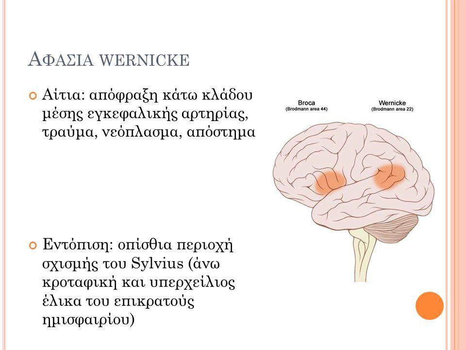 Α ΦΑΣΙΑ WERNICKE Αίτια: απόφραξη κάτω κλάδου μέσης εγκεφαλικής αρτηρίας, τραύμα, νεόπλασμα, απόστημα Εντόπιση: οπίσθια περιοχή σχισμής του Sylvius (άνω κροταφική και υπερχείλιος έλικα του επικρατούς ημισφαιρίου)