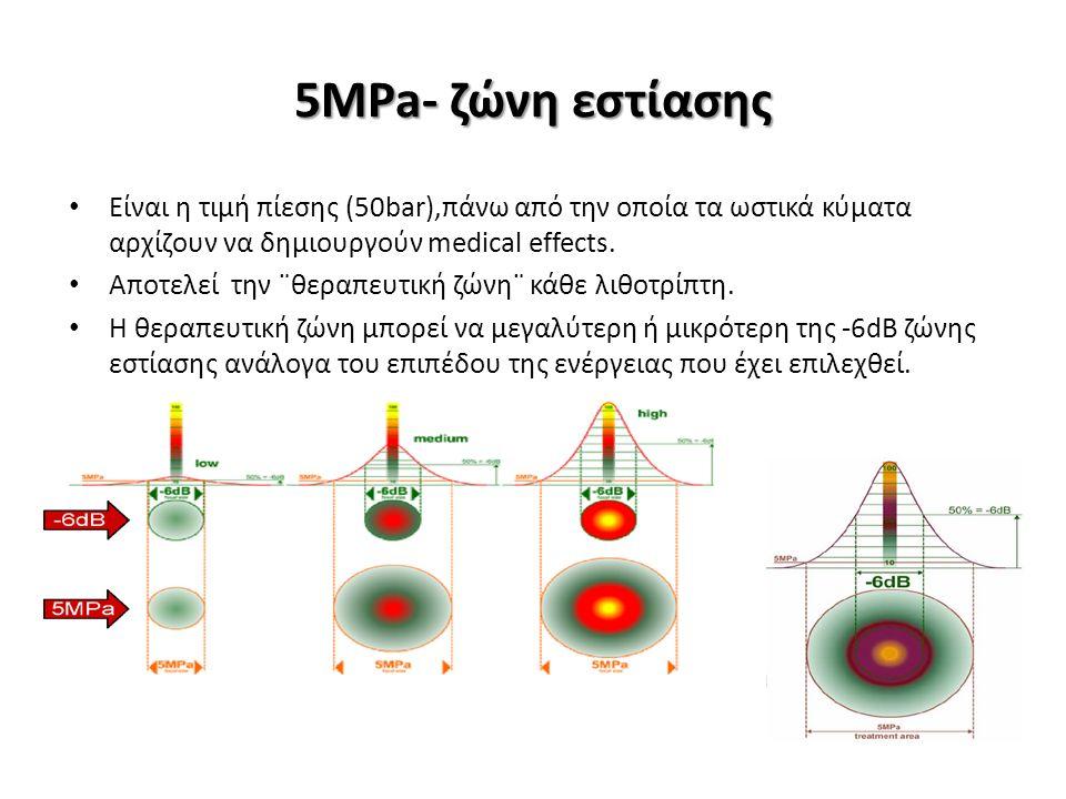 Είναι η τιμή πίεσης (50bar),πάνω από την οποία τα ωστικά κύματα αρχίζουν να δημιουργούν medical effects.
