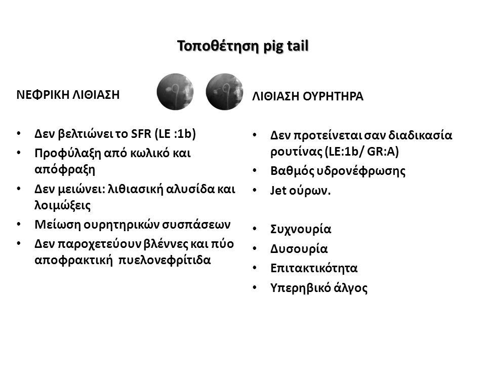 Τοποθέτηση pig tail ΝΕΦΡΙΚΗ ΛΙΘΙΑΣΗ Δεν βελτιώνει το SFR (LE :1b) Προφύλαξη από κωλικό και απόφραξη Δεν μειώνει: λιθιασική αλυσίδα και λοιμώξεις Μείωση ουρητηρικών συσπάσεων Δεν παροχετεύουν βλέννες και πύο αποφρακτική πυελονεφρίτιδα ΛΙΘΙΑΣΗ ΟΥΡΗΤΗΡΑ Δεν προτείνεται σαν διαδικασία ρουτίνας (LE:1b/ GR:A) Βαθμός υδρονέφρωσης Jet ούρων.