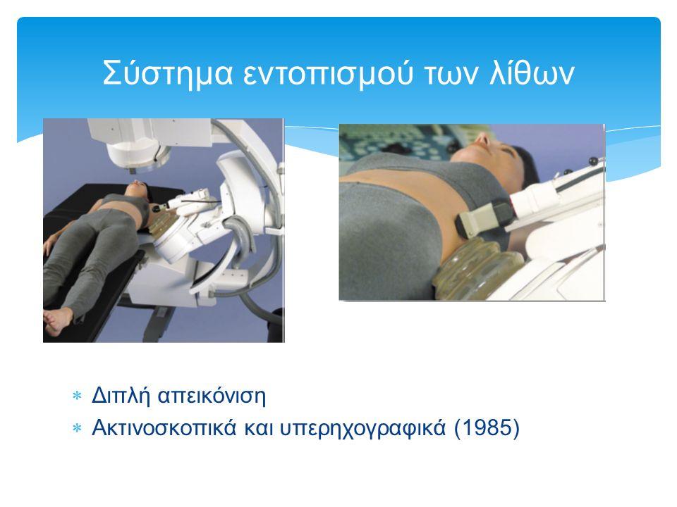 Διπλή απεικόνιση  Ακτινοσκοπικά και υπερηχογραφικά (1985) Σύστημα εντοπισμού των λίθων