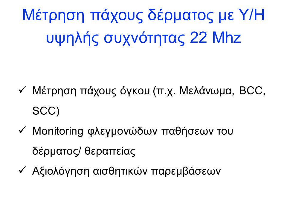 Μέτρηση πάχους δέρματος με Υ/Η υψηλής συχνότητας 22 Mhz Μέτρηση πάχους όγκου (π.χ.