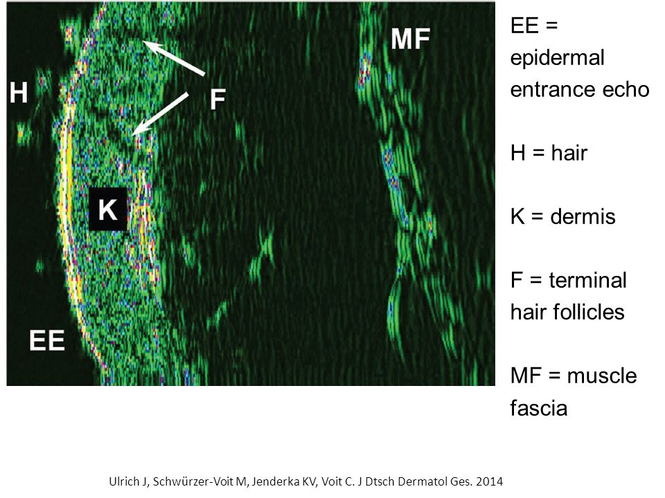 EE = epidermal entrance echo H = hair K = dermis F = terminal hair follicles MF = muscle fascia Ulrich J, Schwürzer-Voit M, Jenderka KV, Voit C.