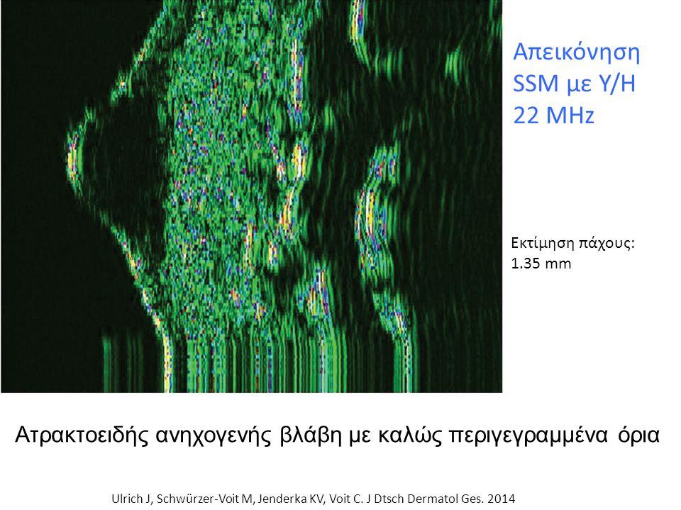 Απεικόνηση SSM με Υ/Η 22 MHz Ulrich J, Schwürzer-Voit M, Jenderka KV, Voit C.