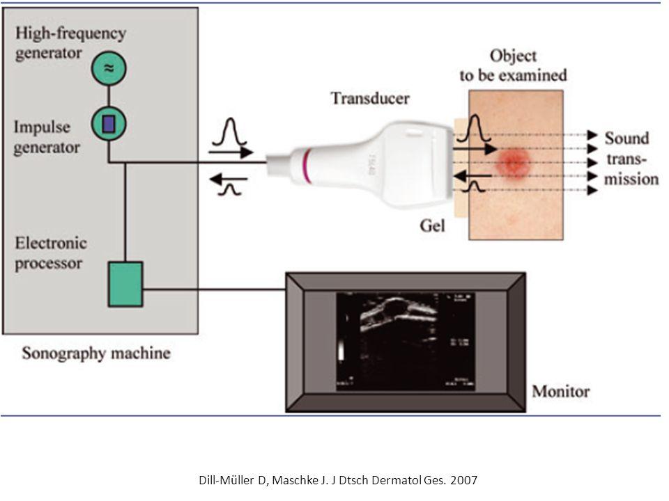 Βάθος διείσδυσης σε αντιστοιχία με τη συχνότητα Υ/Η ~3,5 MHz: Υ/Η άνω και κάτω κοιλίας ~7,5 – 10: MHz χόριο και μαλακοί ιστοί, π.χ.