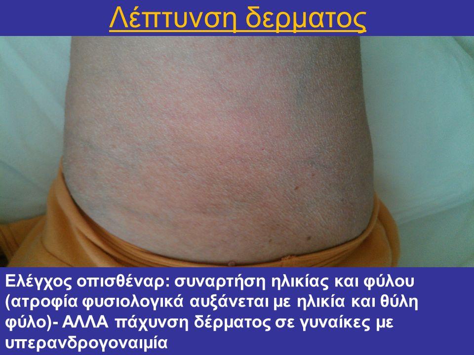 Λέπτυνση δερματος Ελέγχος οπισθέναρ: συναρτήση ηλικίας και φύλου (ατροφία φυσιολογικά αυξάνεται με ηλικία και θύλη φύλο)- ΑΛΛΑ πάχυνση δέρματος σε γυν
