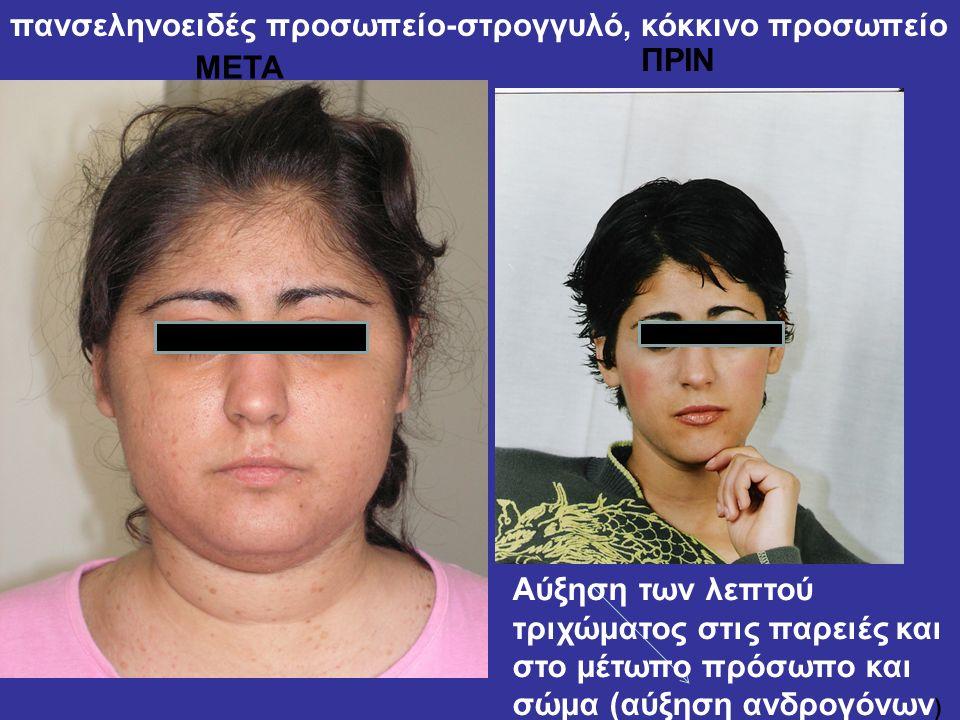 πανσεληνοειδές προσωπείο-στρογγυλό, κόκκινο προσωπείο ΜΕΤΑ ΠΡΙΝ Αύξηση των λεπτού τριχώματος στις παρειές και στο μέτωπο πρόσωπο και σώμα (αύξηση ανδρ