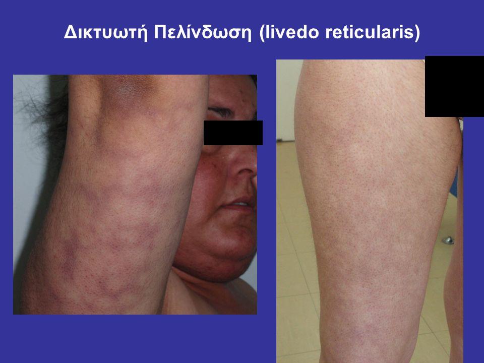 Δικτυωτή Πελίνδωση (livedo reticularis)